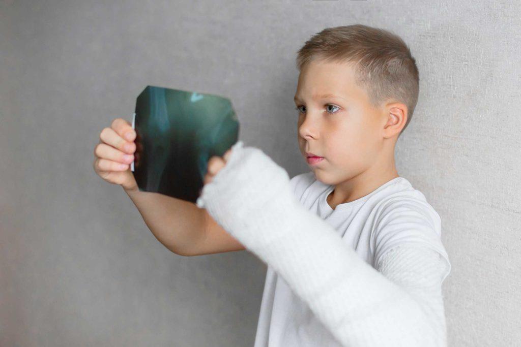 Pediatric Accidents